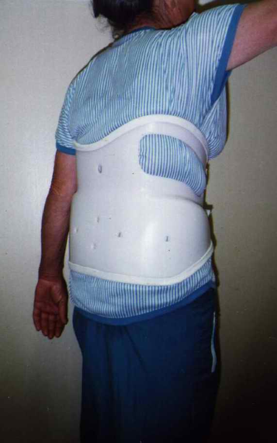Межпозвоночная грыжа поясничного отдела лечение 5 мм